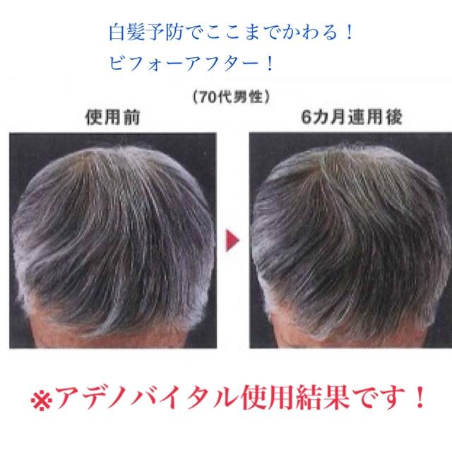 予防 白髪 髪の毛のプロ直伝。白髪が気になる女性必読の白髪予防対策・ヘアケア方法 |プラスサイズ(大きいサイズ)の女性のためのライフスタイルマガジン|colorear(コロレア)
